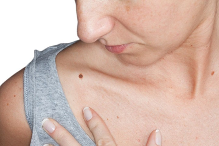 Moles Removal Causes and Best Treatment Options