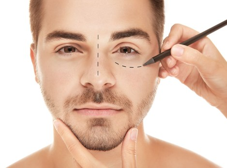 Thread facelift Procedure, Myths and Facts