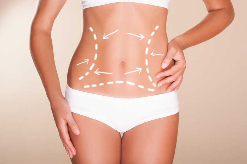 Liposuction Treatment A Instant Weight Loss Procedure