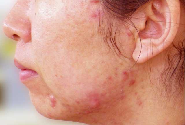 顎ニキビはかゆみや痛みが出やすいニキビです。