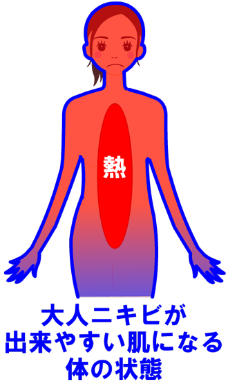 大人ニキビが出来やすい肌になる体の状態