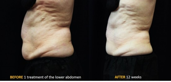 CoolSculpting Advanced Dermatology Amp Skin Surgery