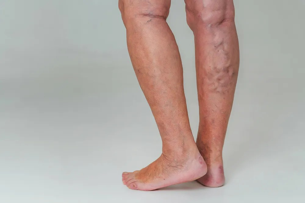 Varicose veins in the advanced stage.