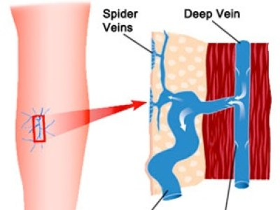 spider veins formation