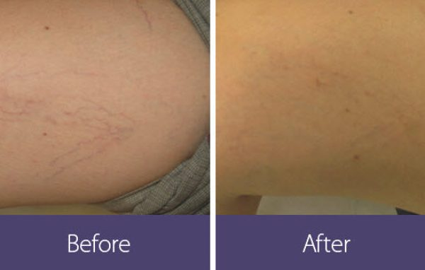 spider veins lasered