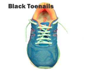 Running shoe lacing - Black Toenails