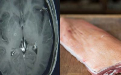 More Than 700 Tapeworms Found In Man's Brain After Eating Uncooked Pork In China