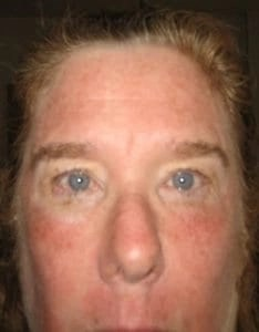 my skin right after fraxel lasser treatment
