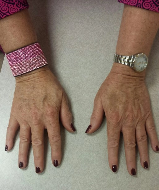 another view of my hands befopre treatment