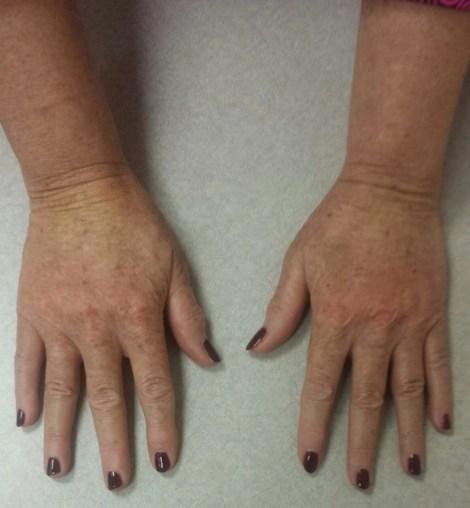 my hands immediately after treatmetn