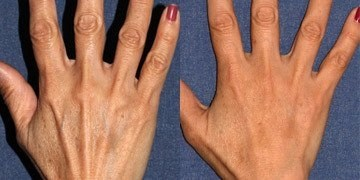 these are not my hands, but they show a dramatic difference between before and after with a Radiesse treament