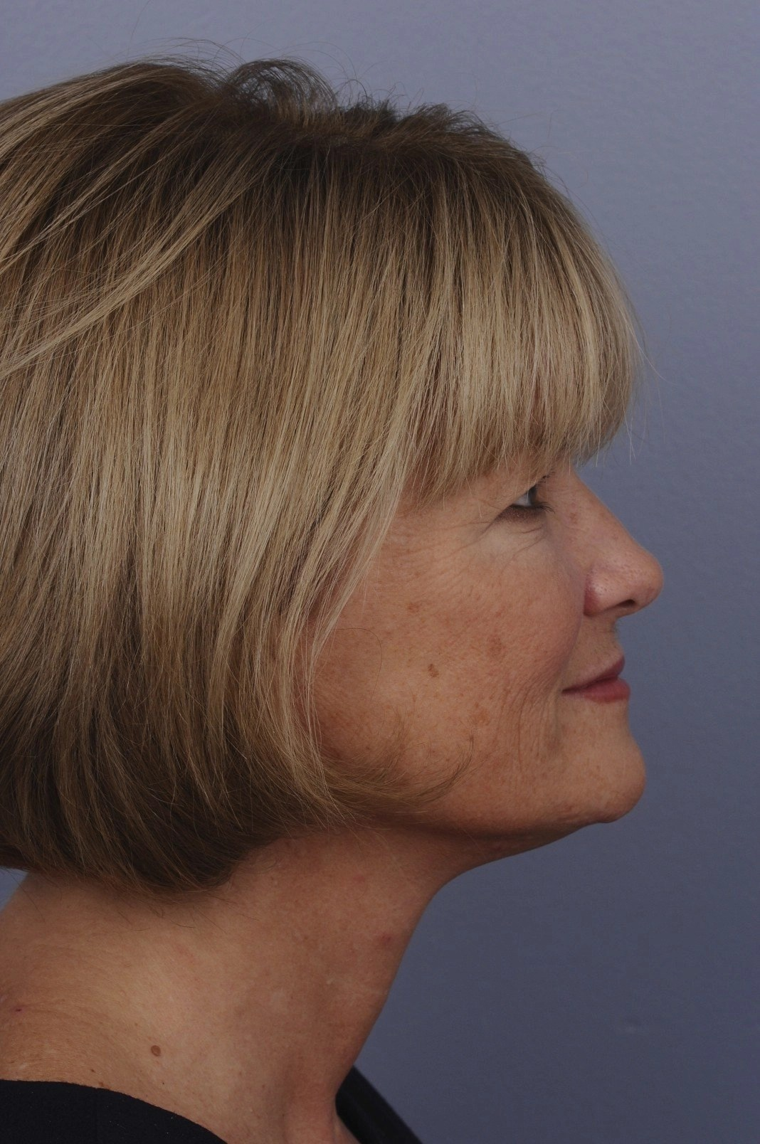 a review of a Stealth Jawline Ultherapy Treatment