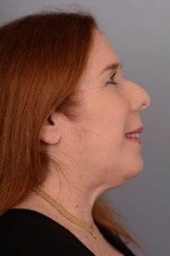 alison after Ultherapy treatment profile view