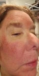 my skin day one post Halo laser treatement