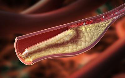 Riesgos Colesterol Alto