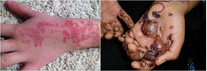 Fig.3 y 4 Reacciones de sensibilización por Henna negra