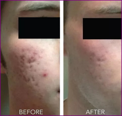 Acne treatment with Microneedling