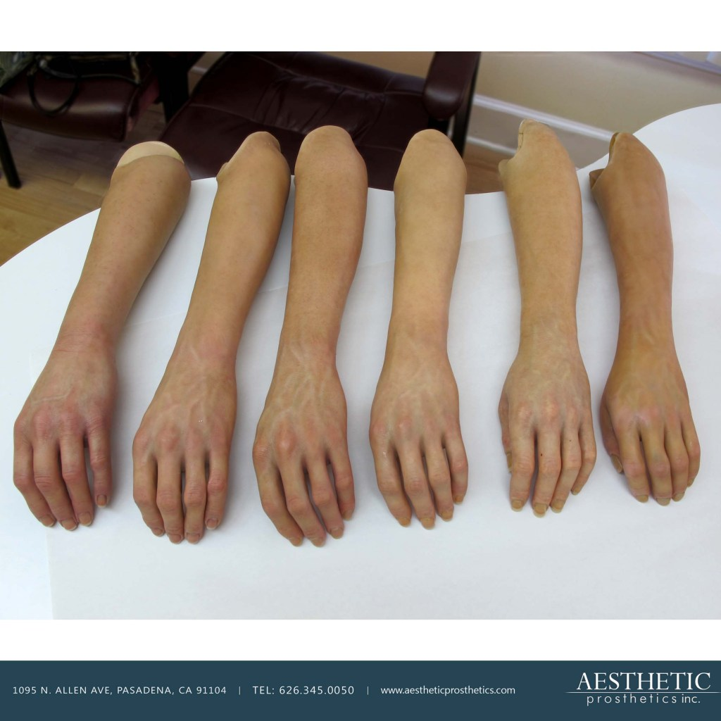 six realistic custom silicone prosthetic arms made by aesthetic prosthetics  in  southern california los angeles pasadena laid out on a table in chronological order