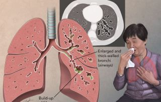 CT scan of lung disease treated with Afflovest