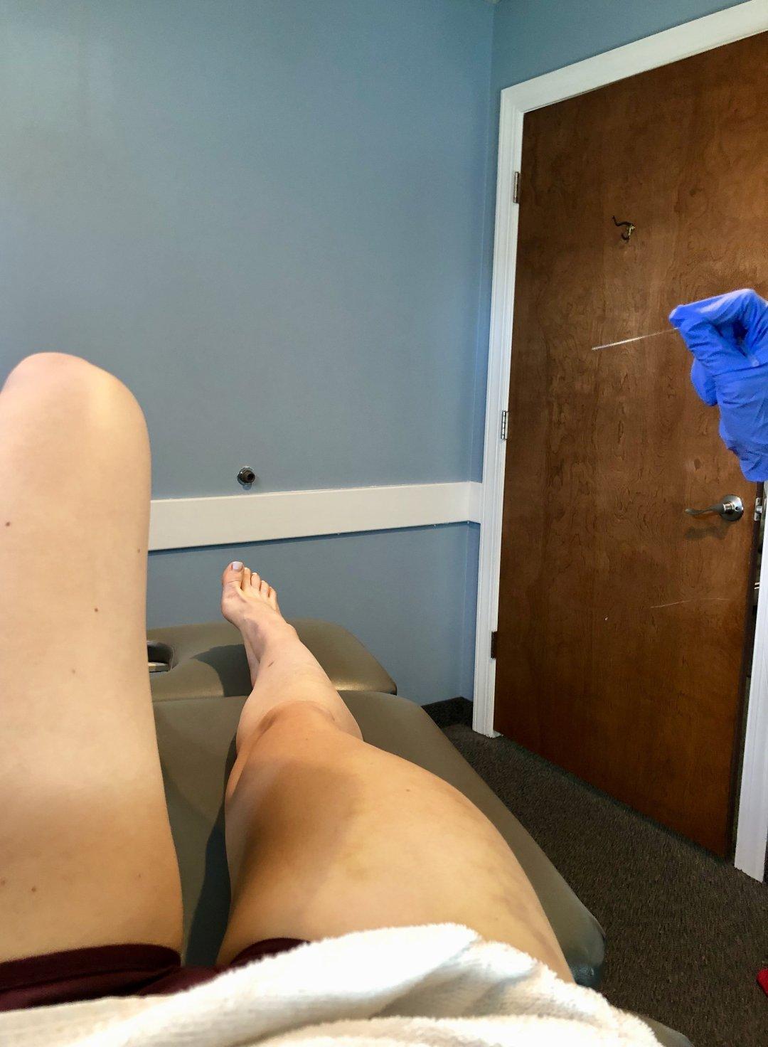 does dry needling hurt