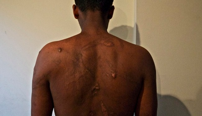 Eritreans suffer rape, violence in Sudan, Egypt torture camps