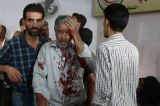 Government air strikes kill at least 80 in Syrian market