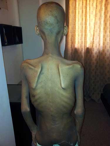 Merhaui, 14 anni, poco dopo la liberazione