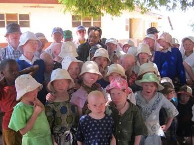 miss-progress-tanzania-albini