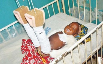 21-month old Musa Murtala on his hospital bed
