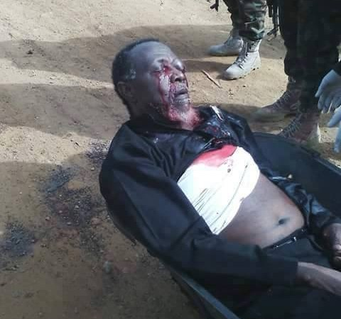 EXCLUSIVE: Sheikh Zakzaky Blinded In One Eye, DSS Sources Say — SaharaReporters