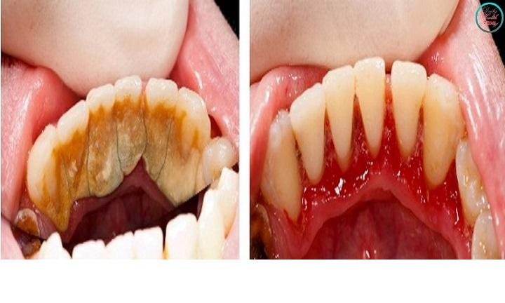 Here's how to get rid of tartar without the help of dentist