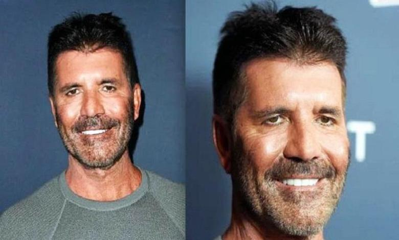 Photo of What happened to Simon Cowell's face?