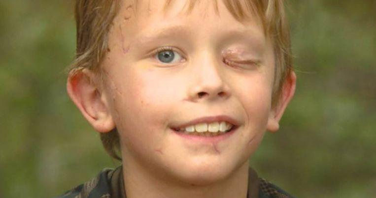 "Boy (8) survives attack by cougar: ""I tried to stab him in the eye"""
