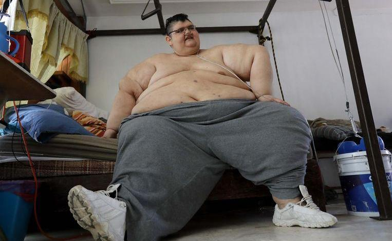 Photo of Heaviest man in the world loses 330 kilos and can finally walk again