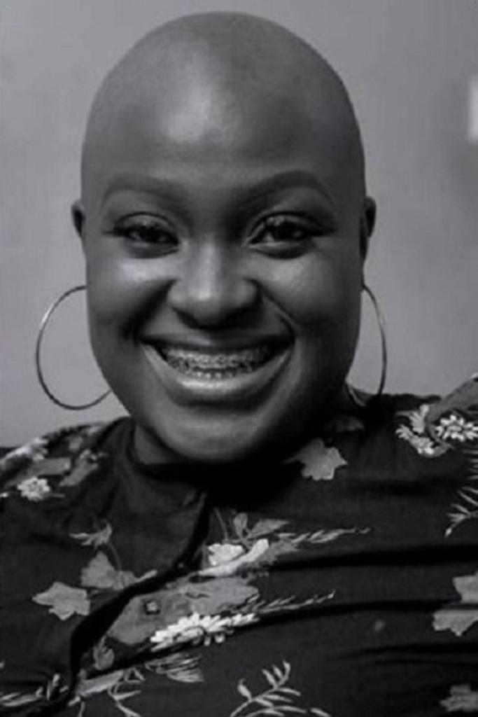 Adwowa Obeng suffers complete loss of hair syndrome for 22 years