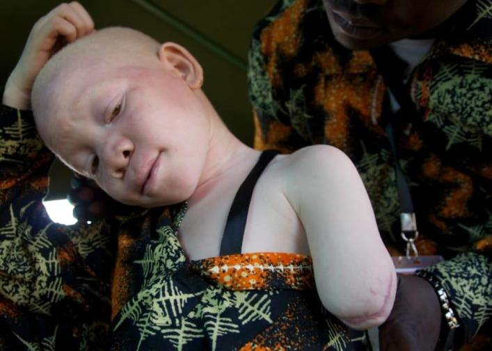 a young albino girl's was chopped off
