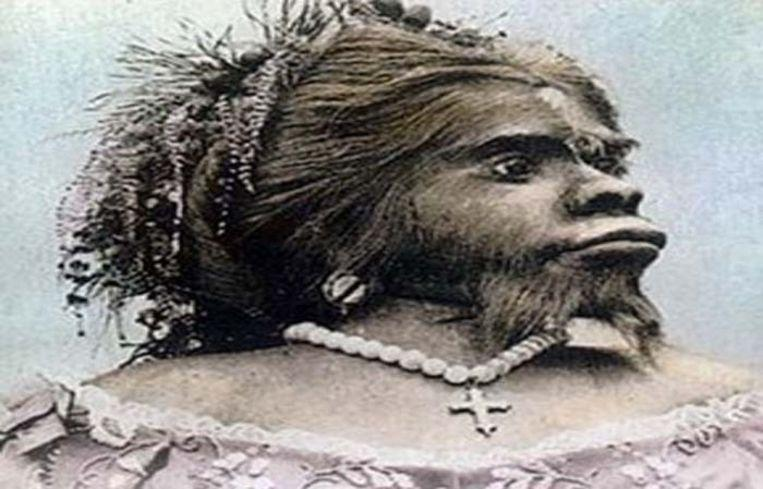 Julia Pastrana, 'ugliest woman' who had over 20 marriage proposals
