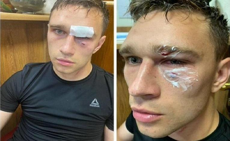 """Photo of """"Unfair red card"""": Captain thunders blow on the face of referee"""
