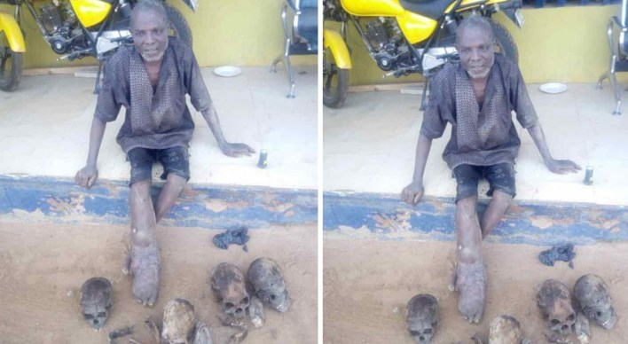 Ogun Police nab suspected Ritualist with human skulls, dry hands and jaws