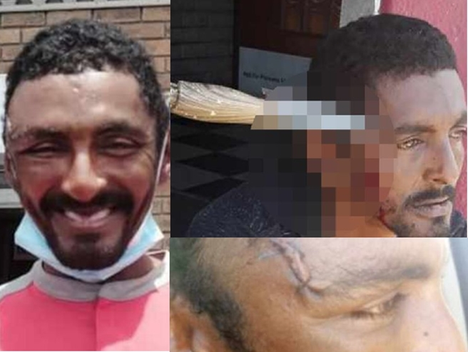 Man who had knife stuck in head in viral video resumes work just three days later