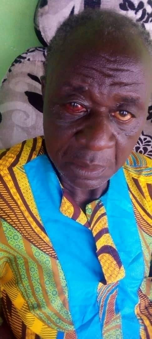 Retired police officer allegedly bites off 18-year-old girl's ear in Edo during quarrel