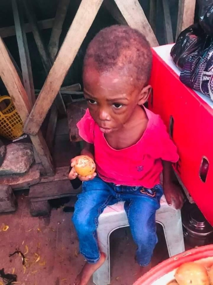 PHOTOS: 2-year-old boy allegedly maltreated and starved by his father, stepmother in Warri rescued