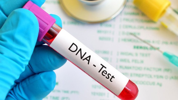 More Nigerians are coming forward for DNA tests – Doctors say