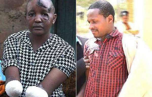 Man chops off wife's hands for failing to bear him children in Kenya
