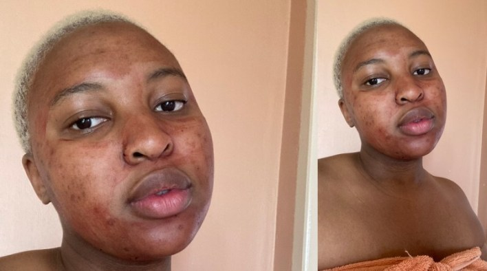 Lady on a quest for clear skin, applies her 'period blood' on her face (Photo)
