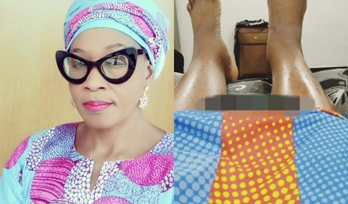 """""""I Can't Walk"""" – Kemi Olunloyo Opens Up On Medical Condition"""