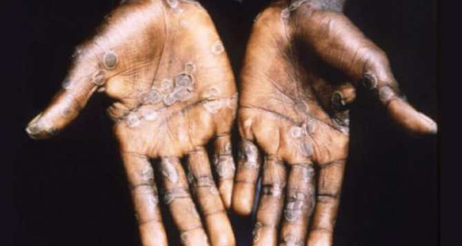 NCDC records 59 suspected monkeypox cases