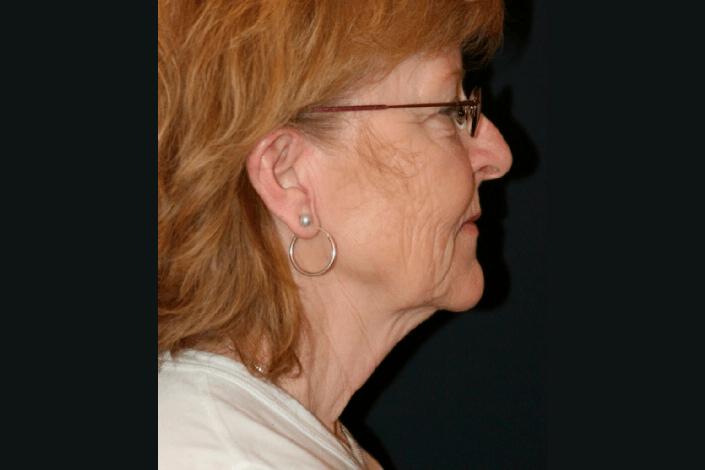 Halsløft før billede
