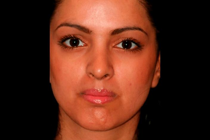 næseoperation efter billede