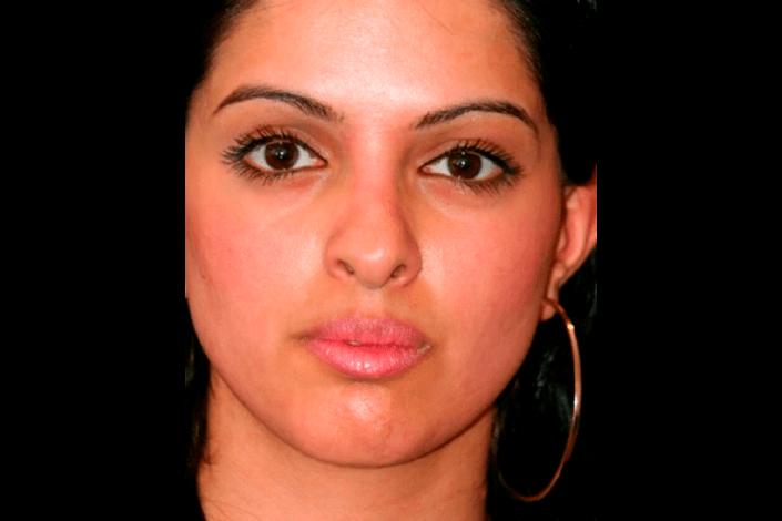 næseoperation før billede